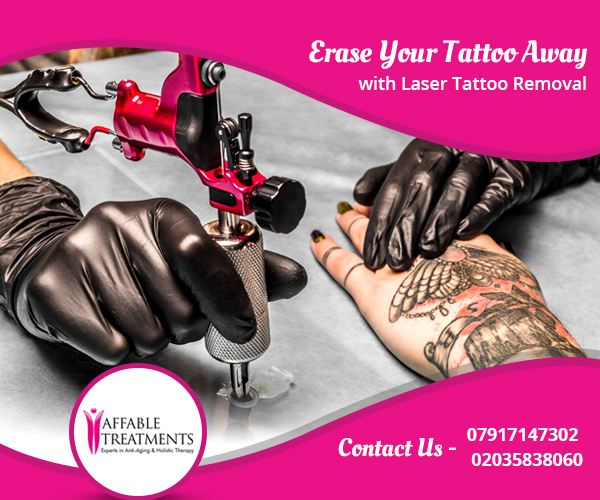 Erase your tattoo away with laser tattoo removal for Erase a tattoo