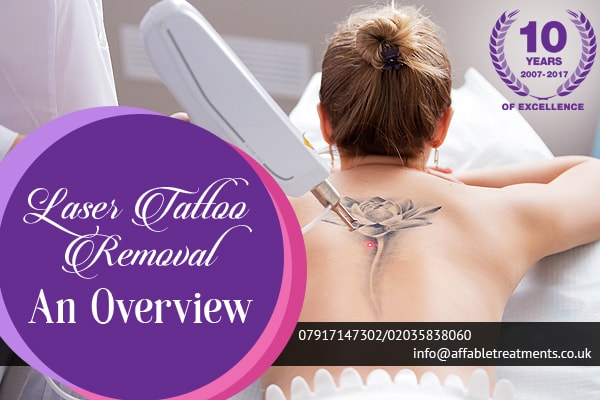 Laser Tattoo Removal An Overview